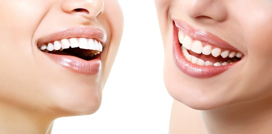 Cosmetic dentistry with two smiles