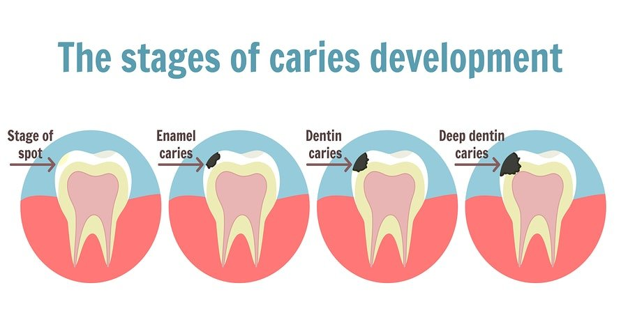 Dental Cavities Development