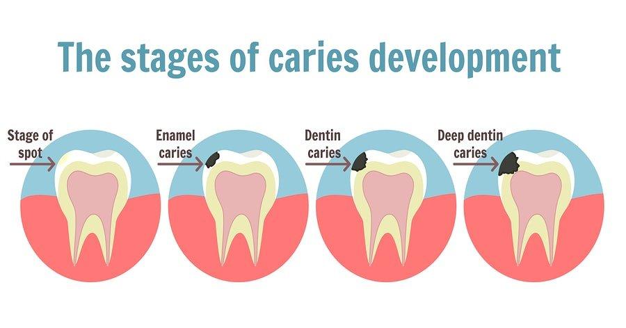 Dental Cavities Development