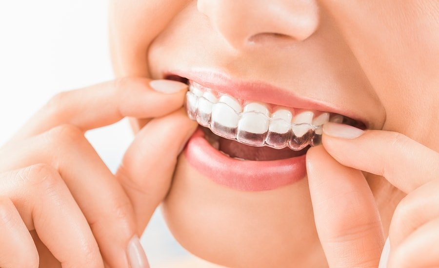 Invisalign, ClearCorrect, Clear Aligners, Orthodontics