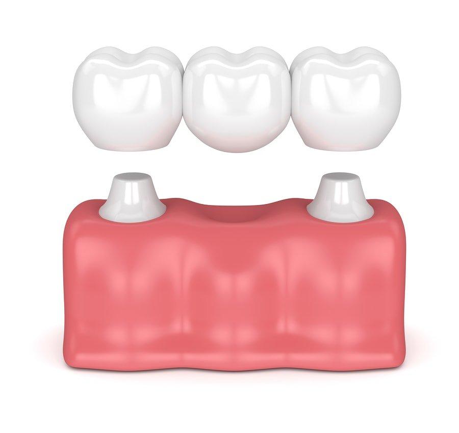 Dental Brdige