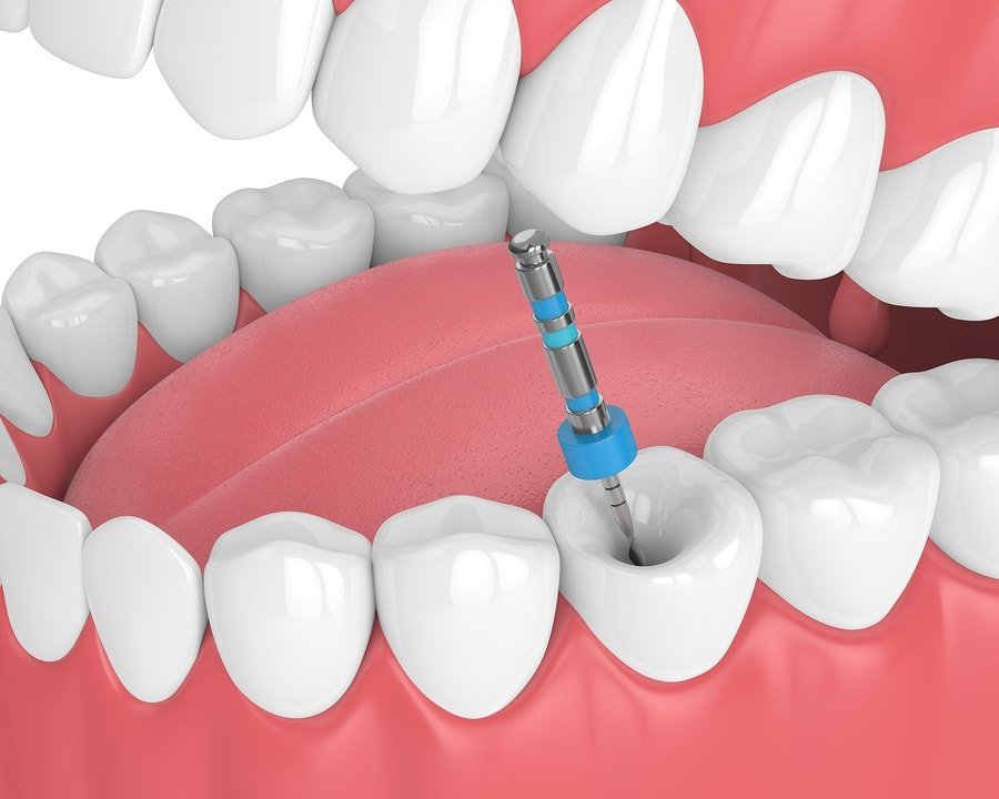 root canal access